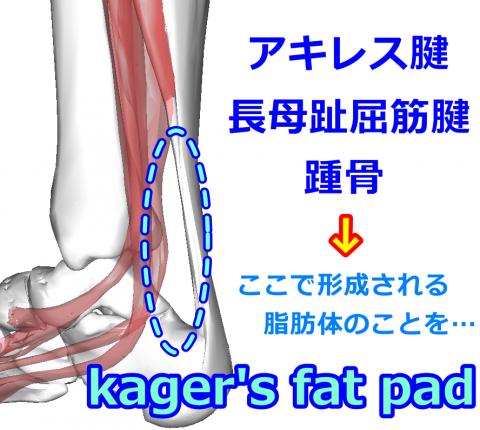 kargae1